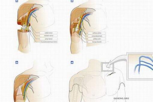 การผ่าตัดต่อแขน1