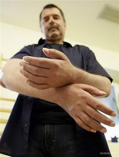 การผ่าตัดต่อแขน10
