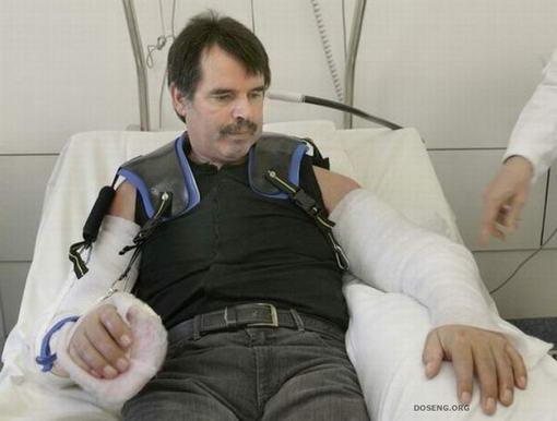 การผ่าตัดต่อแขน3