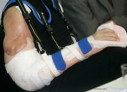 การผ่าตัดต่อแขน4
